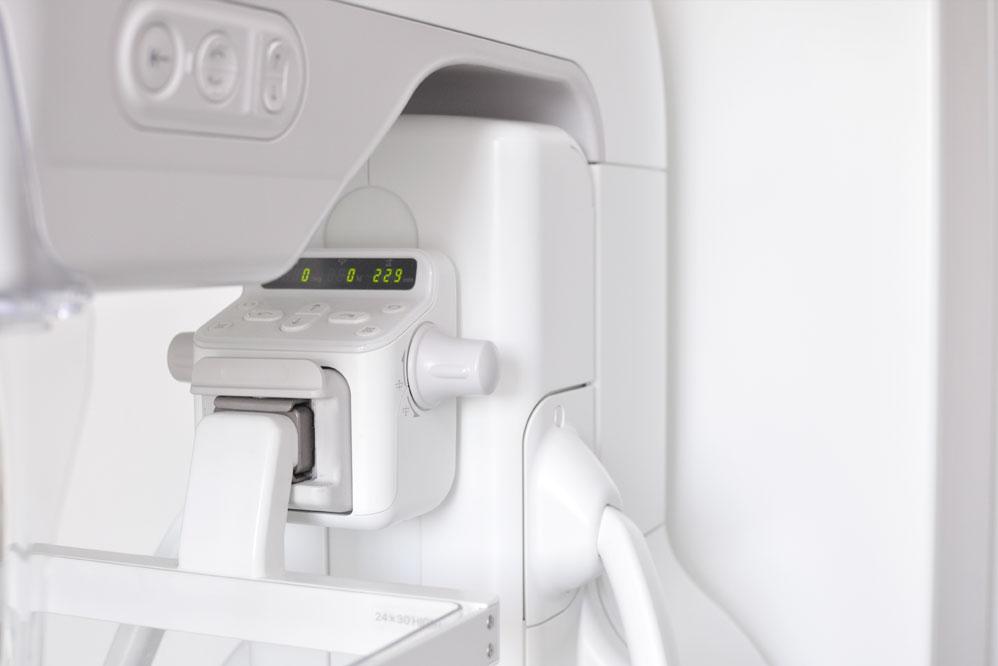 mammographie-brustkrebsvorsorge-lichtenfels